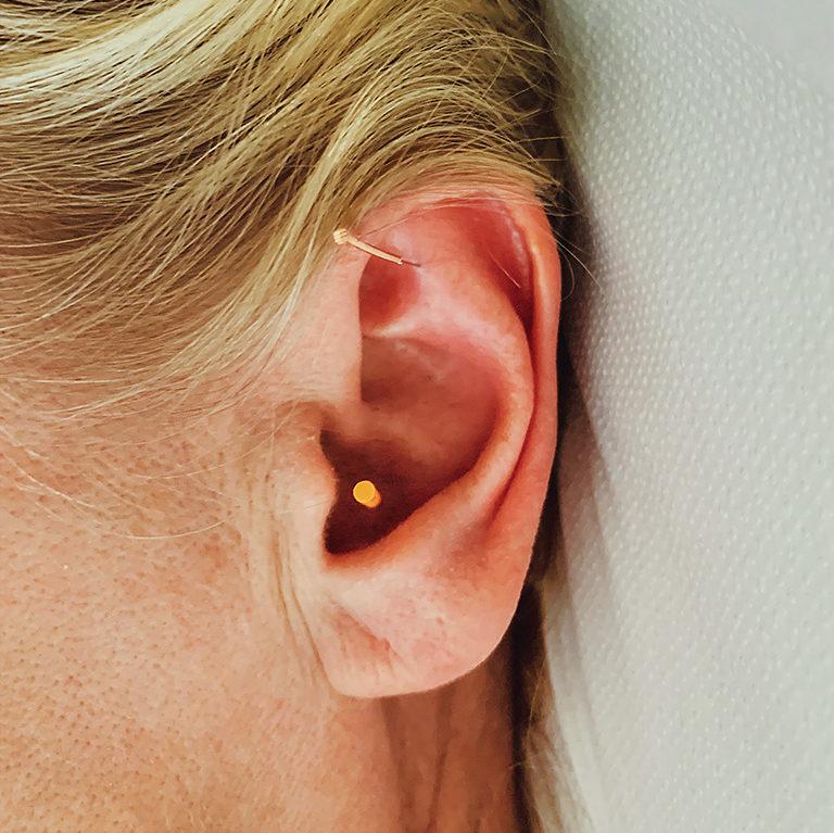 Billede af øreakupunktur
